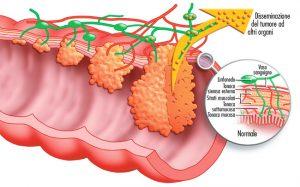 stadiazione-tumore-colon-retto
