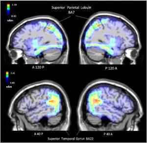 Figura 3_Aree cerebrali attive