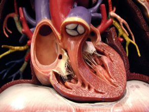 cuore sindrome di brugada