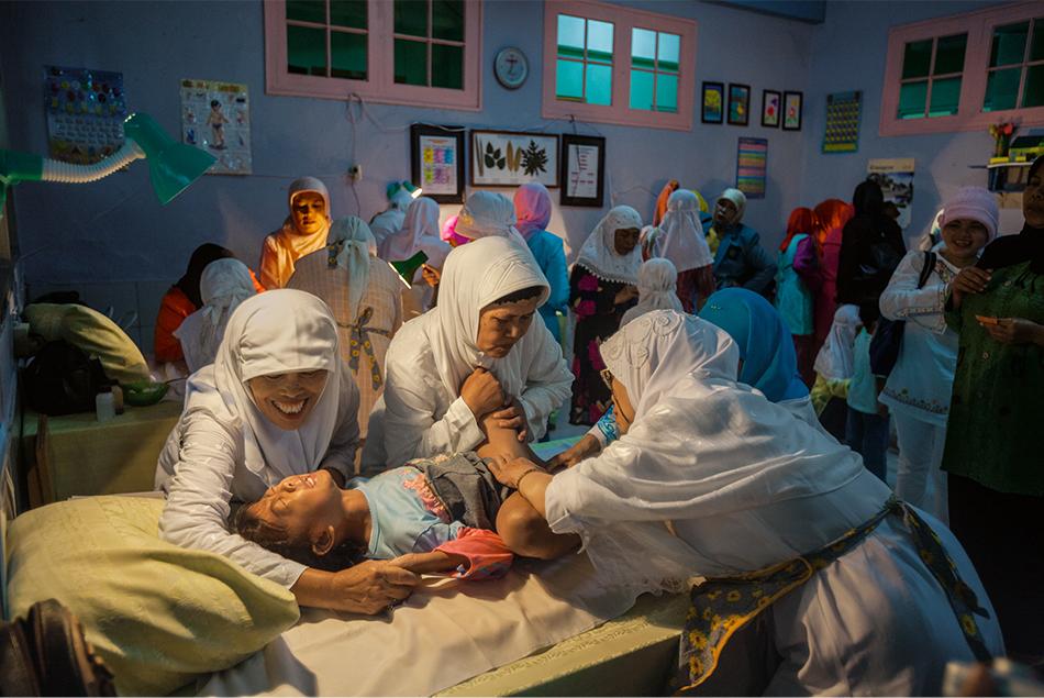 mutilazione genitale femminile