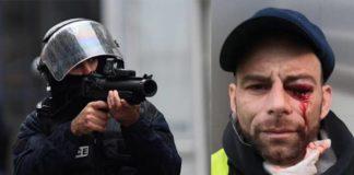 Il Consiglio d'Europa chiede alla Francia di non utilizzare più le flash-ball sui gilet gialli