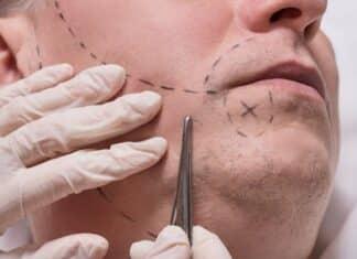 Trapianto della barba